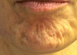 orange chin